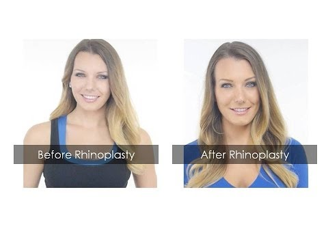 Rhinoplasty Reviews| Finest Example of Best Rhinoplasty Surgery in Mumbai, India | Nose Reshaping