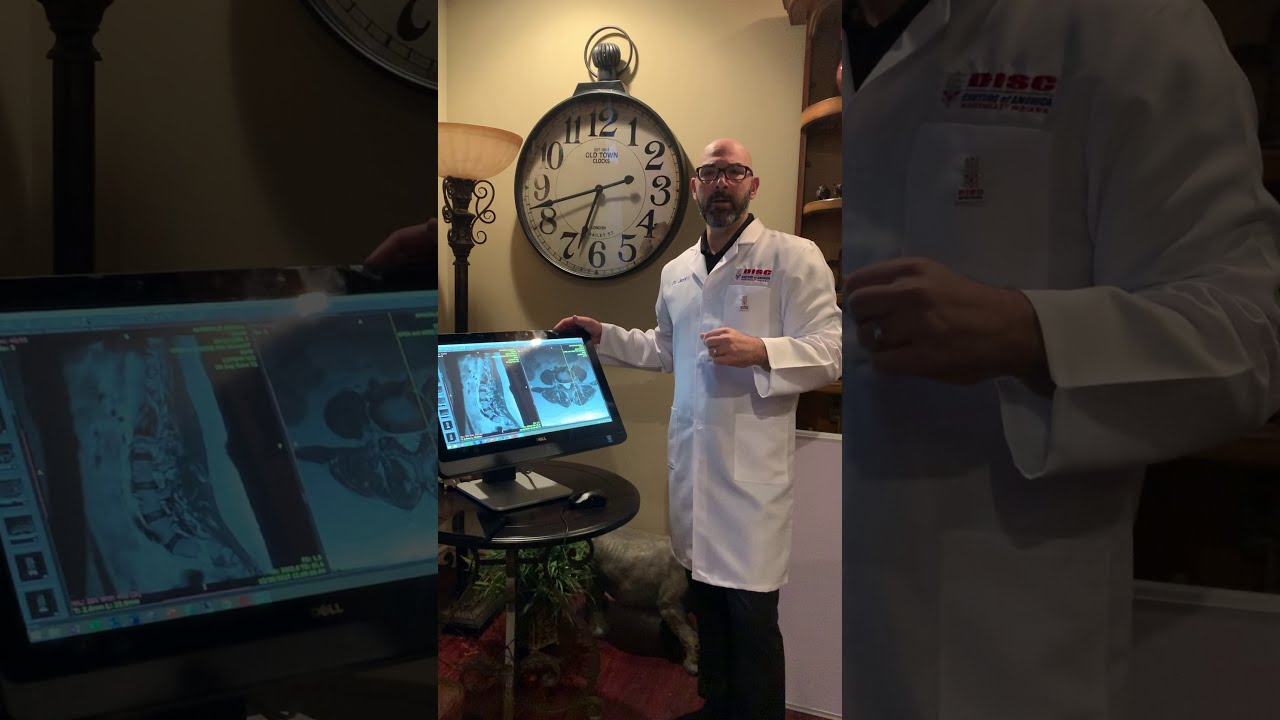 How to Read and MRI made Simple by Dr. Jeff the SPINE Doc!