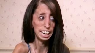 Самая страшная женщина в мире - Моя Ужасная История(23-летняя Лиззи Веласкес стала звездой интернета после того, как пользователи интернета прозвали Лиззи..., 2013-06-15T08:00:32.000Z)