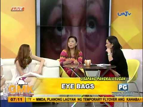 Eye Bags: Kinds, Causes and Treatment