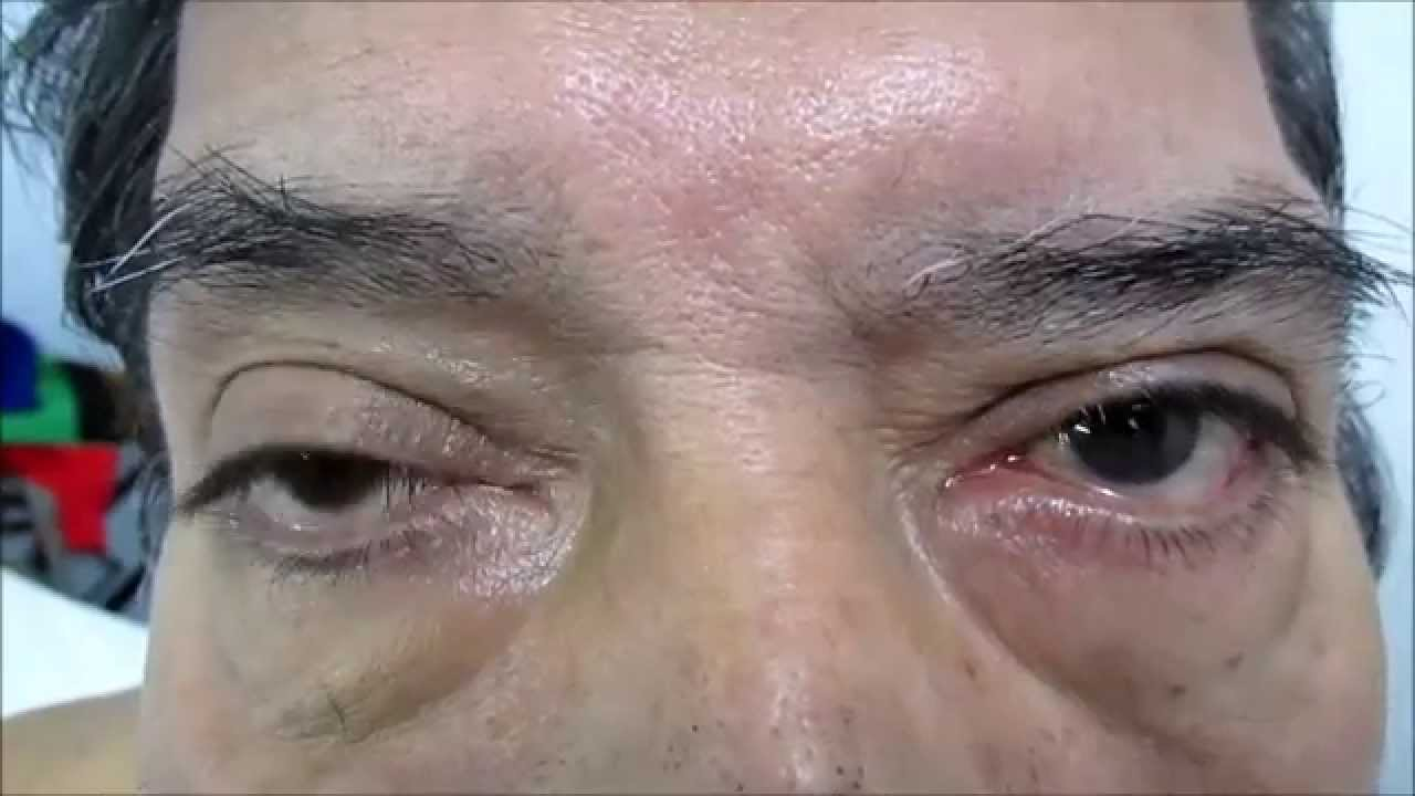Facial Paralysis And Neuralgia