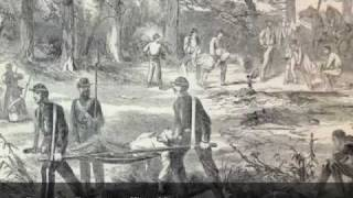 Amputations and Artificial Limbs in the Civil War