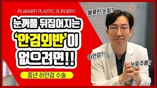[닥터플래너 tv] 부작용 없는 하안검 수술방법, 닥터…