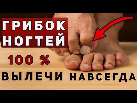 Грибок ногтей на
