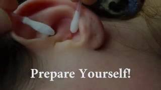 Repeat youtube video Pimple In Ear Exploded's, Very satisfying | Slow mo!