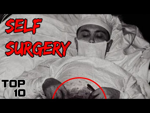 Top 10 Darkest Self Experiments In History