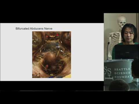 Supernumerary Abducens Nerves - Joy Mu Hsiang Wang, MD, MSc
