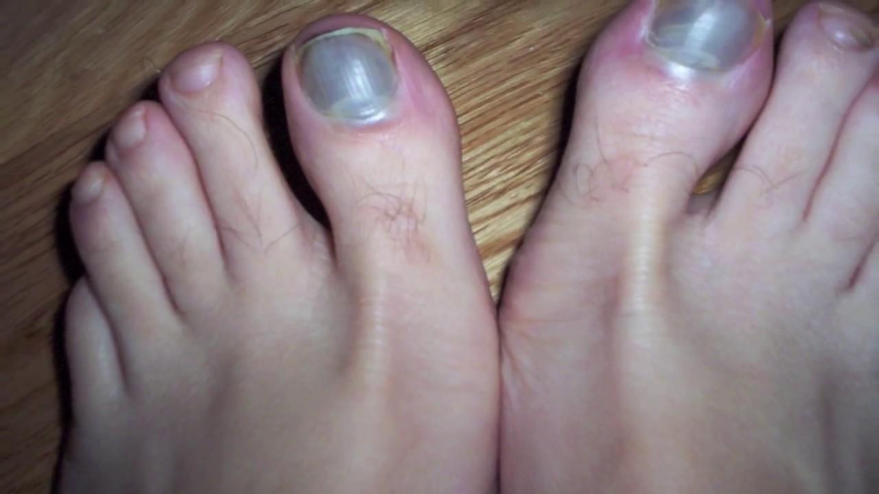 dedo gordo del pie morado por golpe