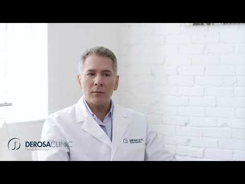 DeRosa Clinic | Acne care, and Why It Matters