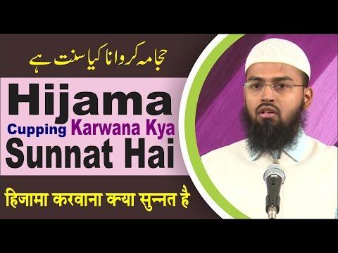 Hijama Cupping Karwana Kya Sunnat Hai By Adv. Faiz Syed