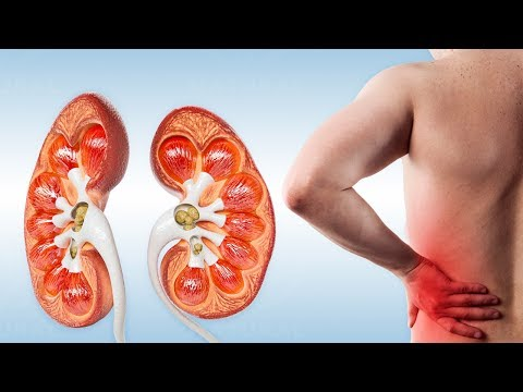 Back Pain? Warning Signs You May Have Kidney Stones