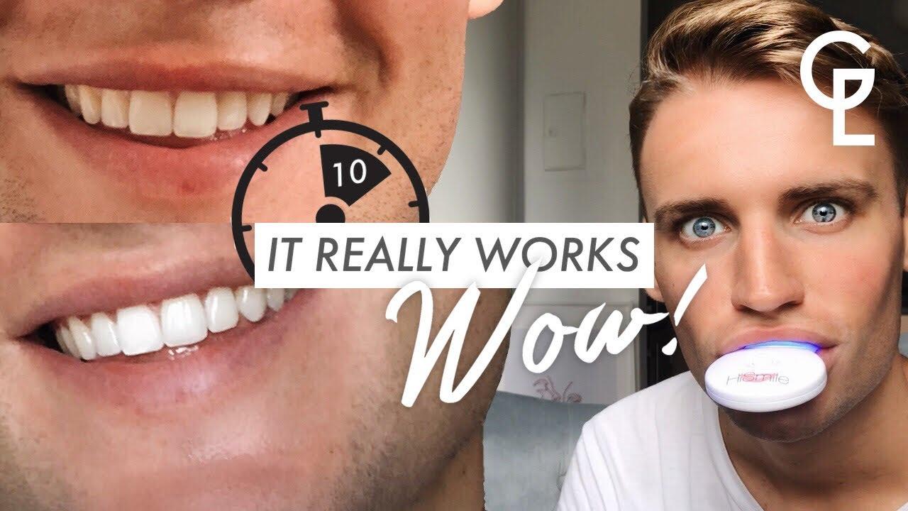 Resultado de imagen de hismile teeth