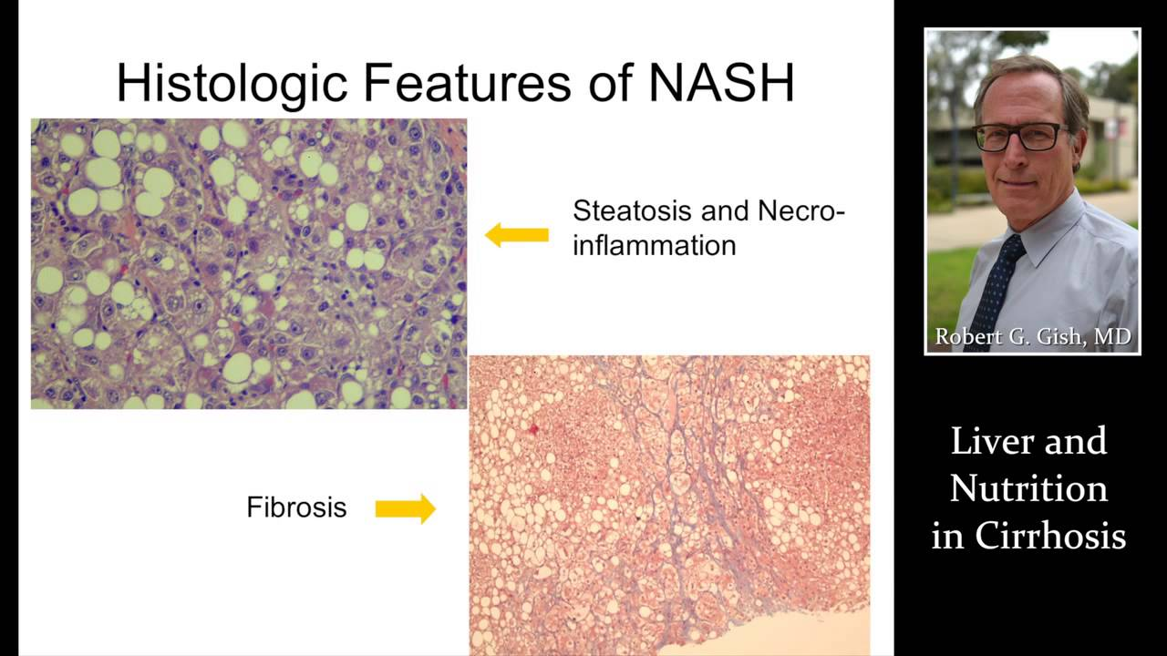 LIVER & NUTRITION IN CIRRHOSIS by Dr. Robert Gish