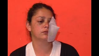 Madre denuncia que, aunque no estaba en marchas, podría perder un ojo por culpa del Esmad