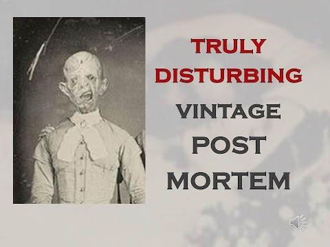 TRULY DISTURBING VINTAGE PHOTOS #3 POST MORTEM
