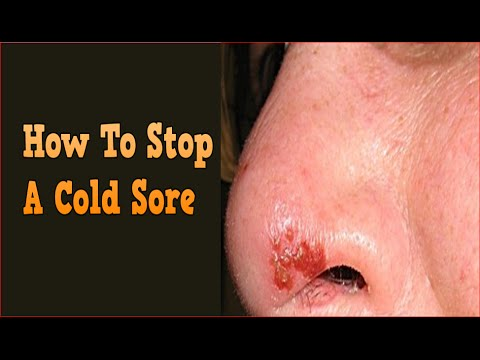 Get Rid Of Cold Sores Forever Naturally