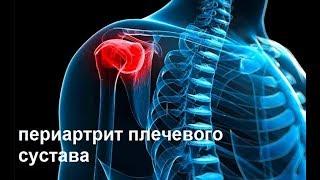 Периартрит плечевого сустава. Господин Лю Бин !!!_ г. Белгород 16.12.2018