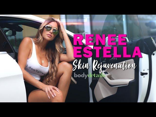Laser Scar Removal Treatment | Renee Estella | Body Details