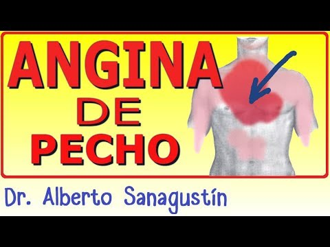 ANGINA DE PECHO ✅ causas, fisiopatología, síntomas, ECG y tratamiento