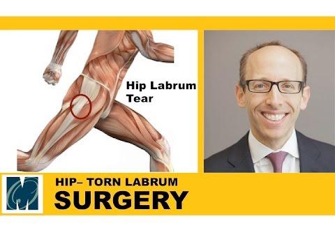 Hip Pain - Torn Labrum Hip