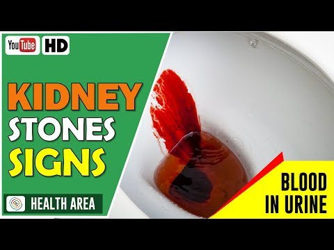 8 Early Warning Symptoms Of Kidney Stones