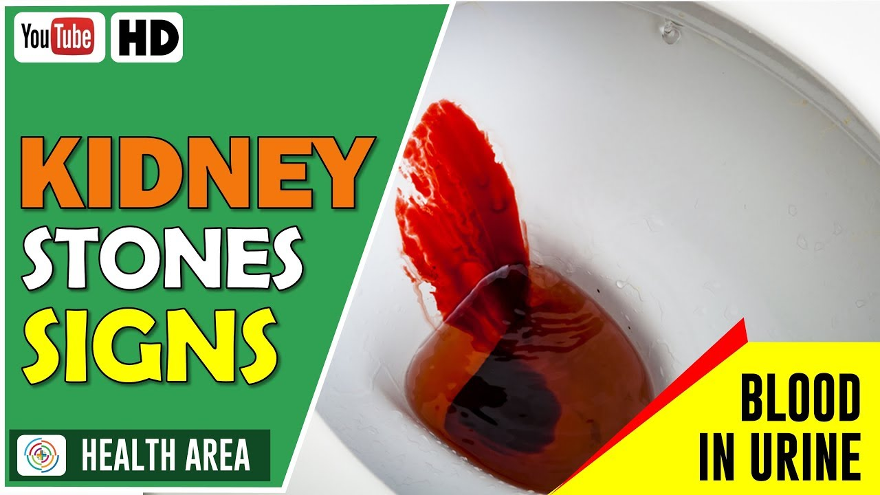 8 Kidney Stone Signs And Symptoms Youtube