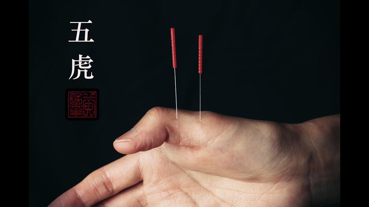 Acupuncture For Trigger Finger - Acupuncture Acupressure ...