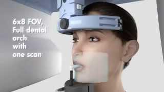 Цифровой панорамный аппарат Orthopantomograph OP300(, 2013-12-20T09:35:28.000Z)