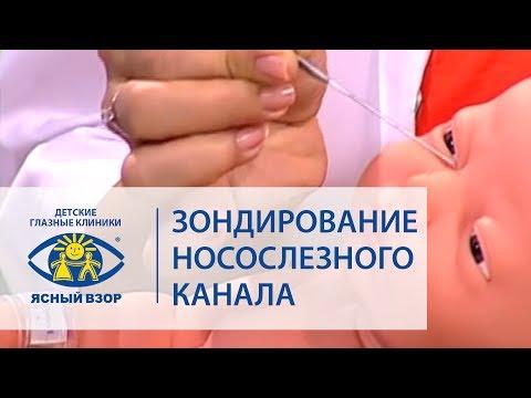Баласанян В.О. Зондирование носослезного канала