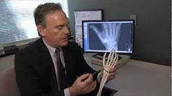 Treating Basal Thumb Joint Arthritis - Mayo Clinic