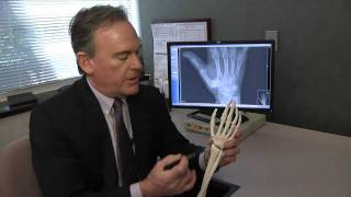 Treating Basal Thumb Joint Arthritis - Mayo Clinic