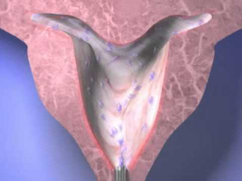 HTA Endometrial Ablation for Menorrhagia