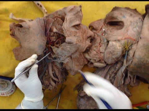 Arteria carótida externa UNMSM - YouTube