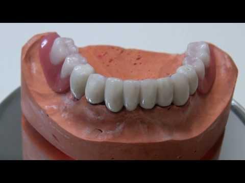 Teleskopprothesen - herausnehmbare gaumenfreie Zahnbrücken