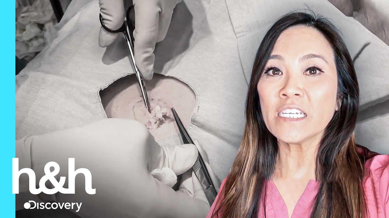 Quiste en la espalda es extraído por completo | Dra Sandra Lee: Especialista en piel | Discovery H&H