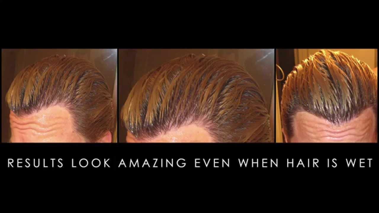 hair transplants results