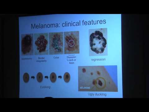 Early Detection of Melanoma