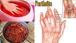 Traiter l'inflammation, l'arthrite et le gonflement des poignets! méthodes naturelles - conseils