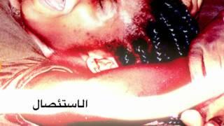 Repeat youtube video Female genital mutilation - FGM ARABIC