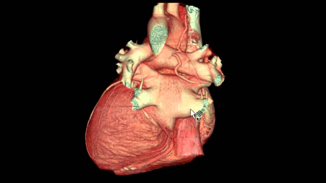 External Features Of The Heart In 3d Youtube