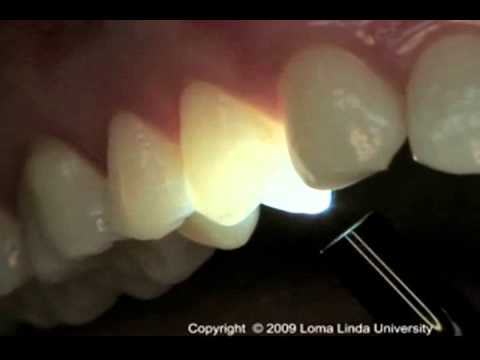 Endodontics Torabinejad 5 13 Transillumination Youtube