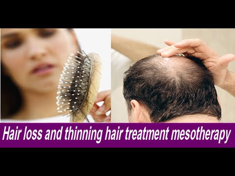 Hair loss and thinning hair treatment mesotherapy