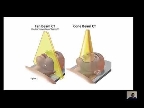 CBCT Impacted Teeth Localization by Dr.Ahmed Hallak