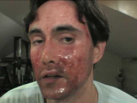Laser Skin Resurfacing Youtube