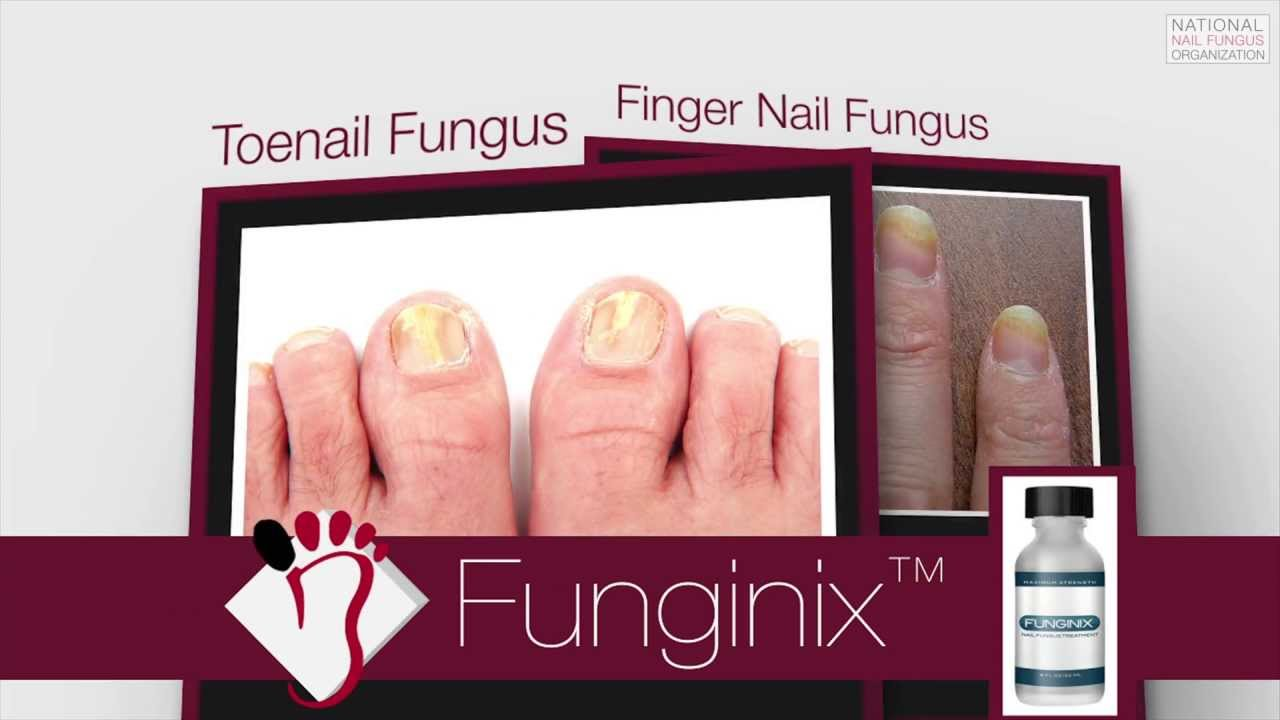 Funginix: Reviews, Ingredients and Side Effects   GNFO