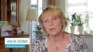 Recensie - BerkelBike Pro - Anja Oonk - Amputatie