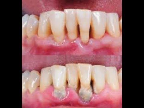 Luar Biasa Inilah Cara Membersihkan Karang Gigi Secara Alami Tanpa
