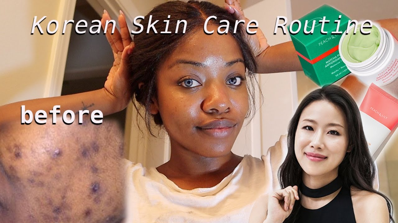 Hyper Pigmentation Dark Skin Korean Skin Care W Founder Of Peach Lily My Skincare Routine Youtube Korean Skincare Hyperpigmentation Skin Care Routine