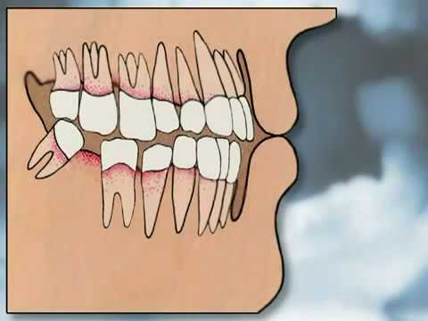 Dental Implants Pros & Cons - YOU MUST SEE IT!