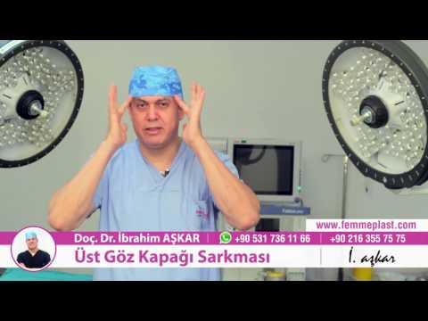 Üst-göz-kapağı-sarkması-ameliyatı---doç.-dr.-İbrahim-aşkar